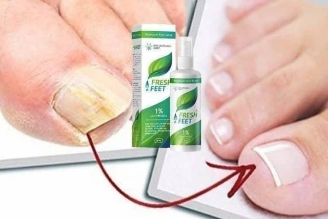 fresh-fingers-resultados